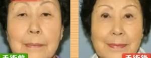 頭痛,肩こり,不眠の原因はまぶたのたるみ?眼瞼下垂症の症状&見分け方/チェック法&手術【世界一受けたい授業7月14日】