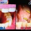 良い・悪い歯ぎしりの見分け方&治療法・直し方【NHKためしてガッテン11月14日】