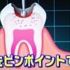 最新虫歯治療カリソルブ&目立たない矯正インビザライン【雑学家族 1月26日】