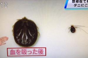 フタトゲチマダニの感染症/生息場所と噛まれた時の対処法【NHKゆうどきネットワーク 2月4日】