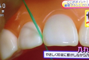 NHKあさイチ 歯周病予防&対策[2月20日 歯間ブラシ/デンタルフロスの使い方,ウスウォッシュ,歯ブラシ]