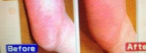 女医が実践!冬の乾燥肌対策&保湿法【ヒルナンデス 2月27日 亜麻仁油/ココアヨーグルト/漢方紫雲膏/シートパック】