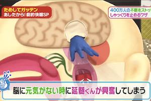 延髄と脳の模型