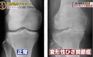 変形性ひざ関節症患者のレントゲン写真