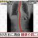 ヘビ背患者のレントゲン写真